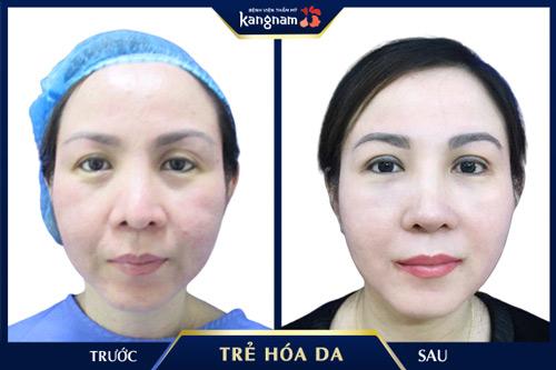 cách chữa nếp nhăn trên mặt