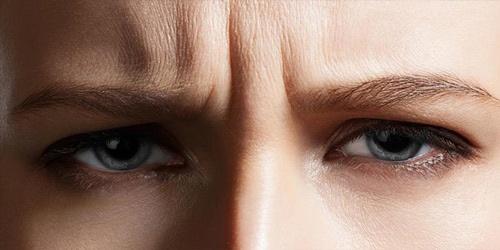 căng da mắt