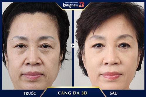 căng da vùng mắt không phẫu thuật