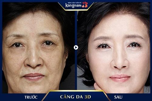 căng da vùng mắt bằng chỉ