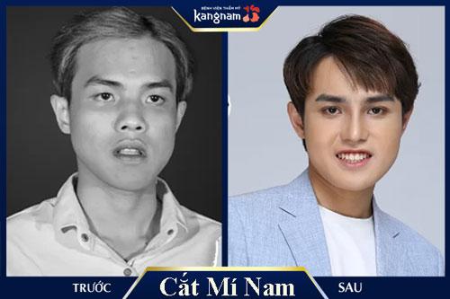 cắt mắt 2 mí cho nam giới tại Kangnam