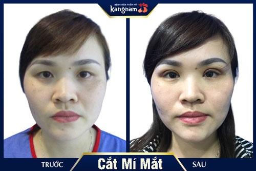 khách hàng cắt mí mắt kangnam