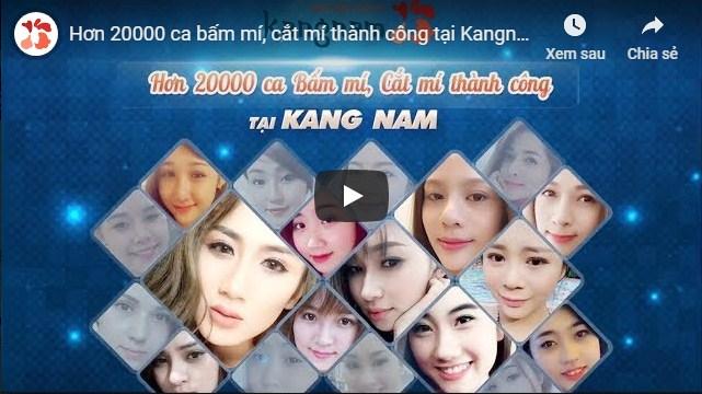 video cắt mí kangnam