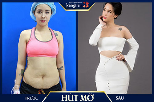 giảm mỡ toàn thân