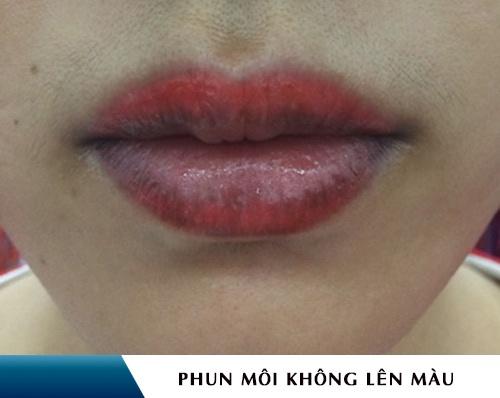 dấu hiệu phun môi bị hỏng