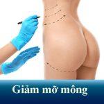 Giảm mỡ mông không phẫu thuật – Vòng 3 căng tròn đầy thu hút
