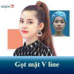 Gọt mặt V line 3D Kangnam – Mặt thanh tú đẹp chuẩn Hàn
