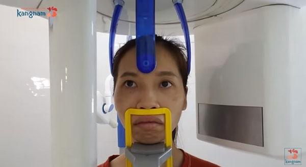 kinh nghiệm phẫu thuật hàm hô miễn phí
