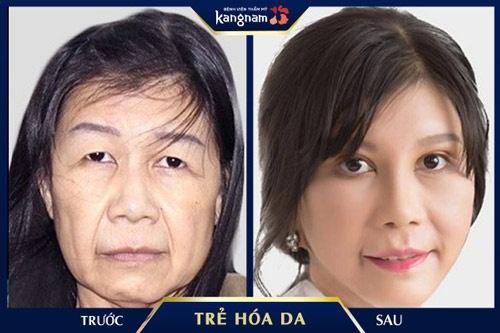 cách trẻ hóa da mặt