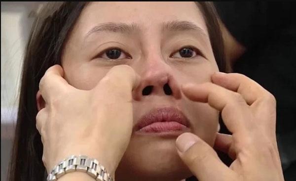 lệch vách ngăn mũi có nên mổ