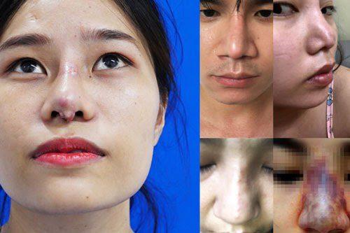 phẫu thuật chỉnh vẹo vách ngăn mũi