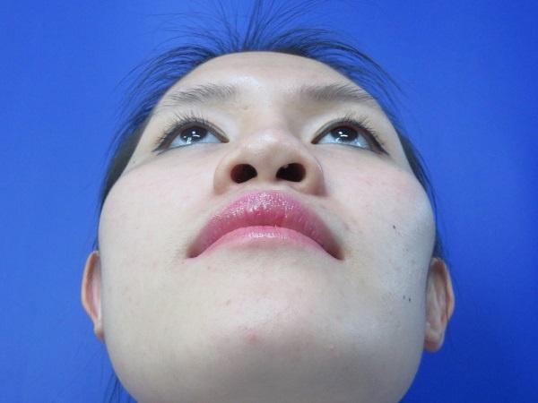 lệch vách ngăn mũi