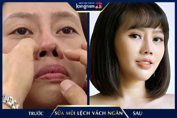 mổ vẹo vách ngăn mũi ở đâu tốt