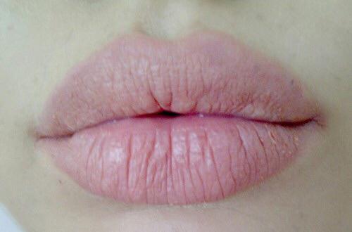 môi nhăn