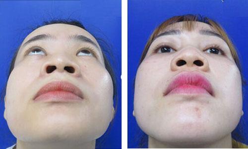 mũi to có xấu không