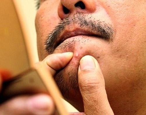 cách triệt râu vĩnh viễn
