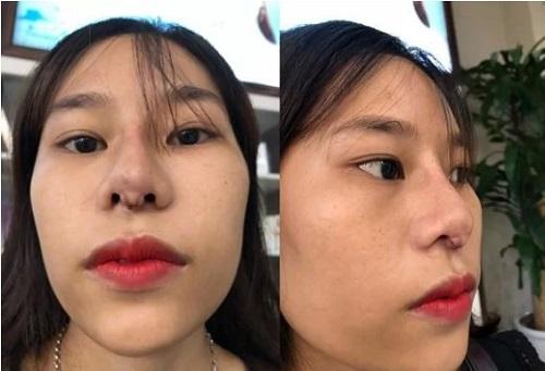 nâng mũi có biến chứng không