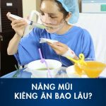 Nâng mũi kiêng ăn bao lâu? Nên – Không nên ăn gì để mũi mau lành?