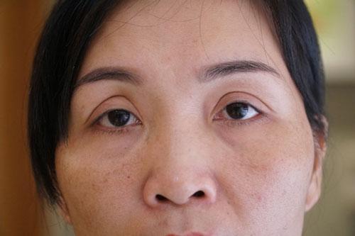 tác hại của việc nhấn mí mắt