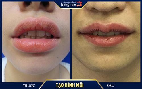 các loại kiểu môi
