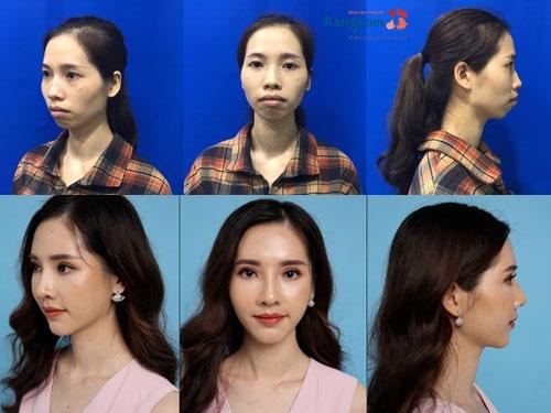 phan thị may kinh nghiệm phẫu thuật hàm hô tại kangnam
