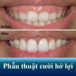 Phẫu thuật cười hở lợi – Tự tin lấy lại nụ cười duyên