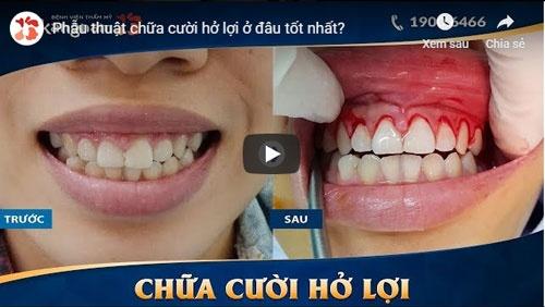video phẫu thuật cười hở lợi