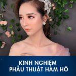 """9X chia sẻ kinh nghiệm phẫu thuật hàm hô hóa """"ngọc nữ"""" xứ Hàn"""