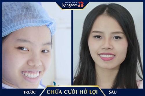phẫu thuật cười hở lợi kangnam