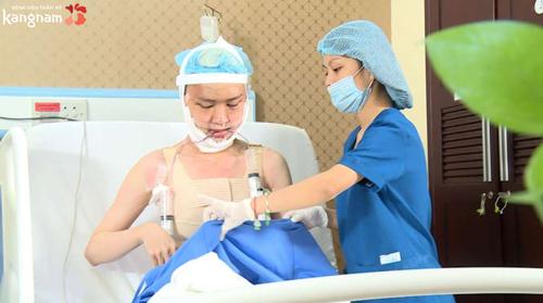 phẫu thuật phì đại tuyến vú ở nam giới