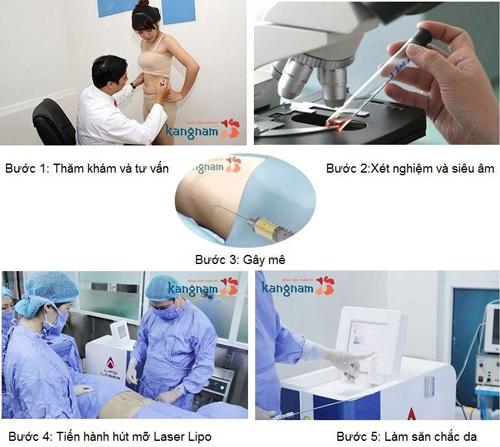 quy trình hút mỡ Kangnam an toàn