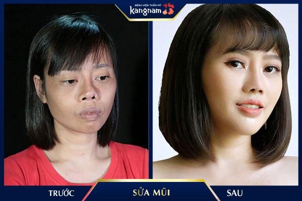 sửa mũi kangnam