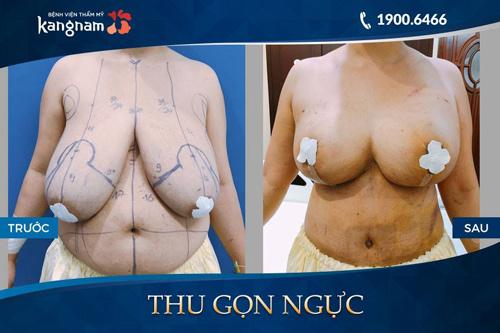 phẫu thuật thu gọn ngực bao nhiêu tiền