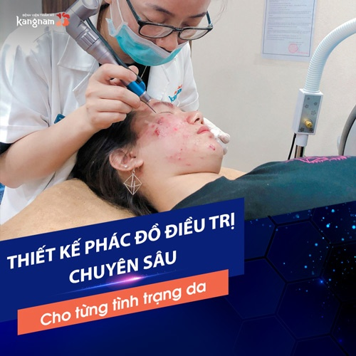 chữa mụn bằng oxy led