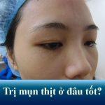 Review địa chỉ trị mụn thịt ở đâu tốt nhất tại Hà Nội và TP.HCM?