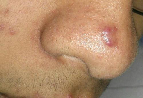 trị sẹo lồi ở mũi