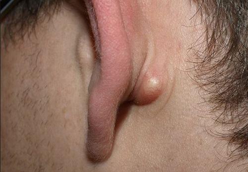 mụn ở tai
