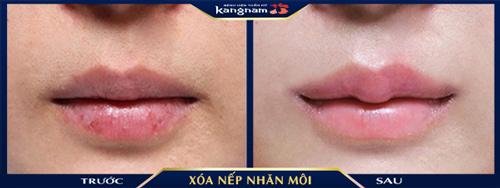xóa nhăn môi