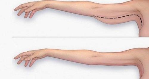 cách làm căng da bàn tay
