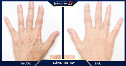 cách làm da tay căng mịn