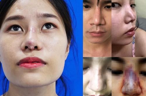 cách thu gọn cánh mũi không cần phẫu thuật