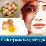 7 cách trị nám bằng trứng gà an toàn cho hiệu quả bất ngờ