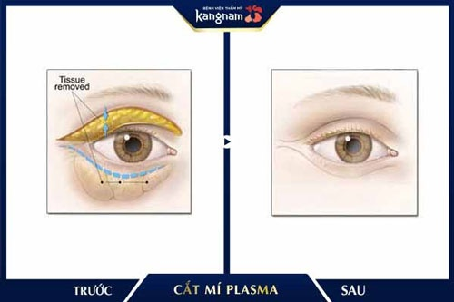 cắt da thừa mí mắt dưới