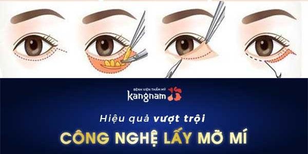 review lấy mỡ bọng mắt