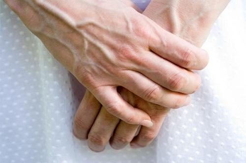 da tay bị nhăn