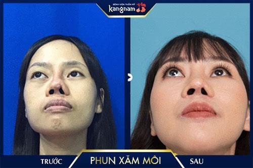 hướng dẫn chăm sóc sau phun môi