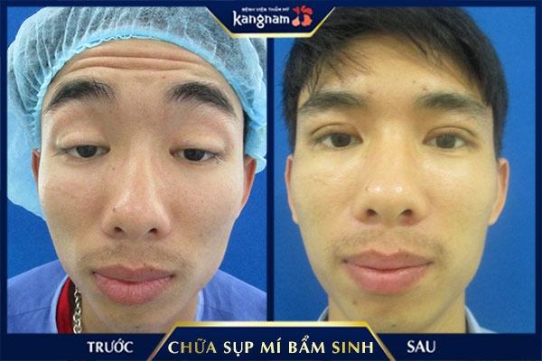 chữa sụp mí bẩm sinh tại kangnam