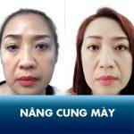 Nâng cung mày Kangnam – Hết sụp mí, trẻ hóa mắt toàn diện