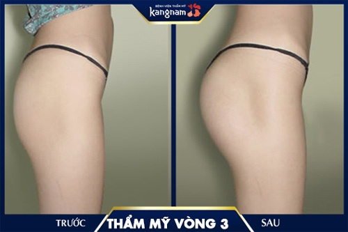 nâng mông bằng mỡ tự thân giá bao nhiêu