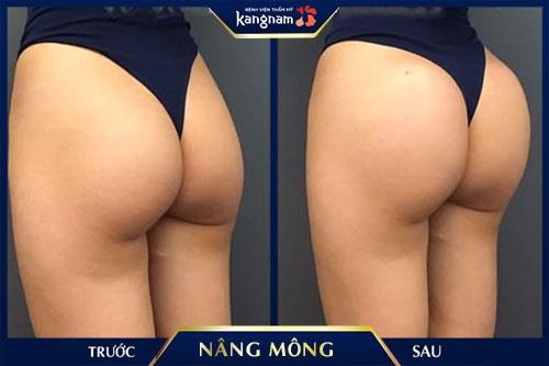 nâng mông nội soi kangnam